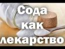СОДА ИСЦЕЛЯЕТ ИЛИ НЕТ И ОПАСНЫЙ МИФ 8 11 17