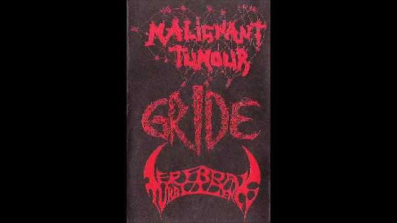 Malignant Tumour - Gride - Cerebral Turbulency - 3 Way Split Tape
