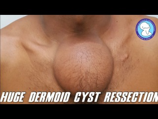 HUGE DERMOID CYST RESSECTION