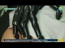 Россиянке установили напечатанный на 3D принтере протез