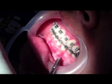 MINI IMPLANTES DE ORTODONCIA. Установка миниимпланта. Ортодонтия.