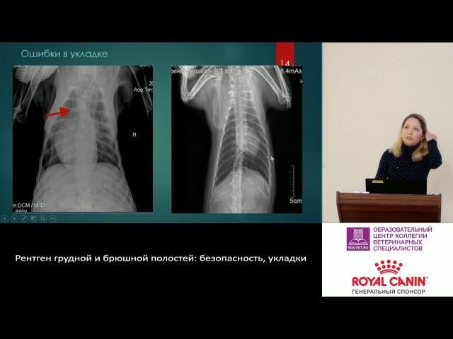 Положение пациента для рентгенографического исследования грудной и брюшной полости