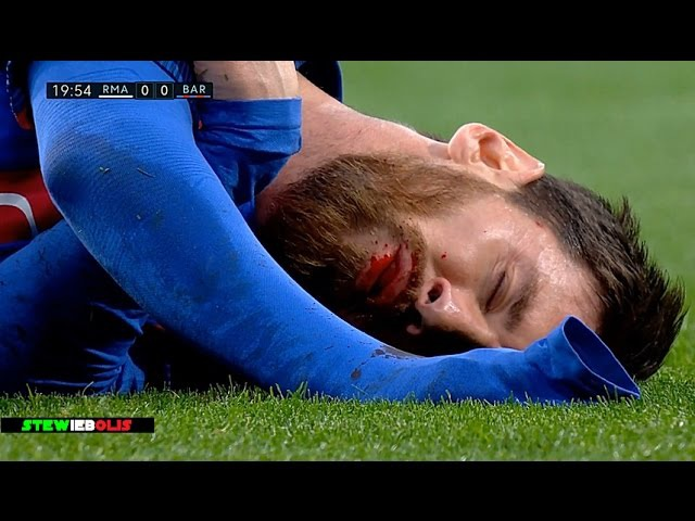 Cristiano Ronaldo, Messi Neymar ● Horror Fouls,Bleeding ● 1080i HD CristianoRonaldo Neymar