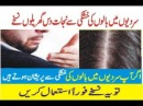 Dandruff flakes in Hair Dandruff Solution 100% result urdu hindi