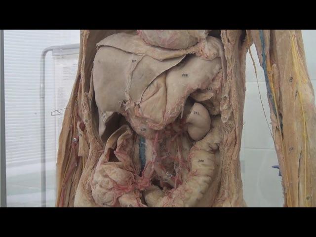 Артерии брюшной полости на сосудисто-нервном трупе