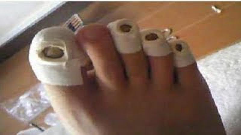 ★Особенности применения уксуса для лечения грибка ногтей. Рецепты для лечения ...