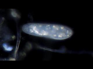 Микроскопия в темном поле - инфузория туфелька