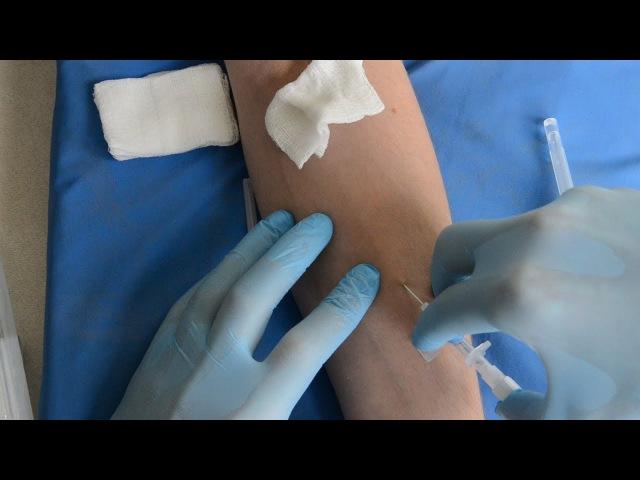 Катетеризация периферической вены / peripheral venous cannulation