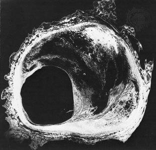 Атероматозная пластинка: коронарная артерия