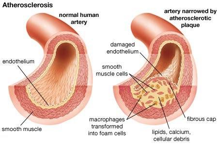 атеросклероз сравнение артерий