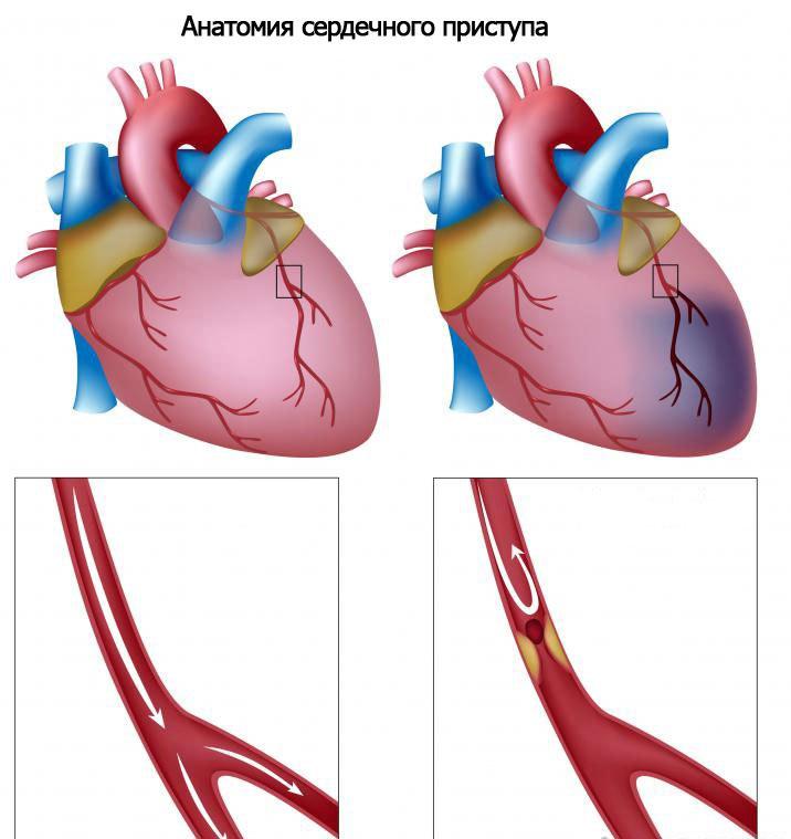 Анатомия сердечного приступа из-за холестерина