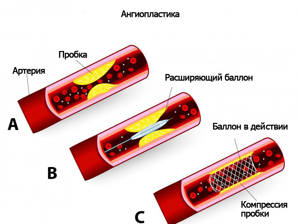 Ангиопластика может использоваться для лечения блокированных коронарных артерий