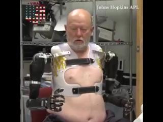 Тестирование модульного протеза руки, управляемого мозгом