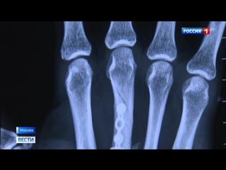 Вести.Ru Чудо-техника поможет спасти пациентов