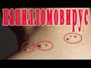 ★Как ЛЕЧИТЬ ПАПИЛЛОМЫ в домашних условиях ЭФФЕКТИВНО. Методы избавления от папилломавируса ВПЧ.