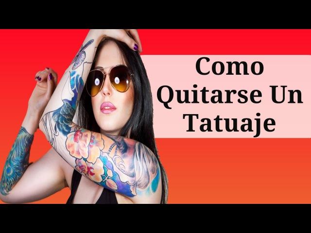 Como Quitarse Un Tatuaje, Cuanto Cuesta Eliminar Un Tatuaje, Como Borrar Un Tatuaje De La Piel