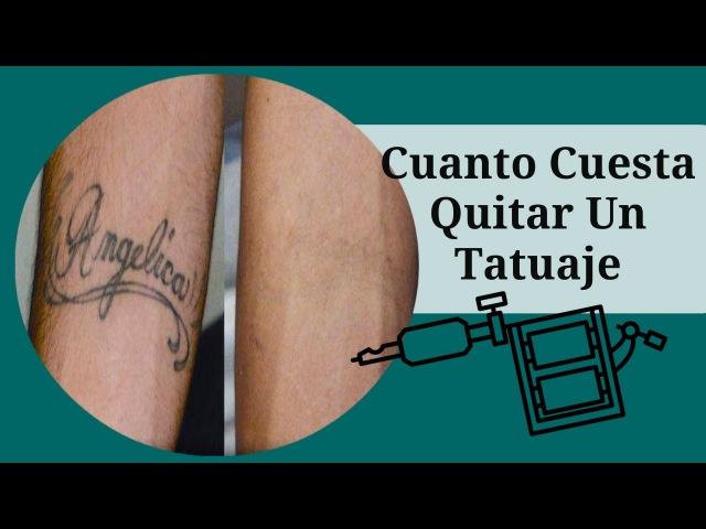 Cuanto Cuesta Quitar Un Tatuaje, Como Borrar Un Tatuaje En Casa, Como Borrar Un Tatuaje Sin Laser