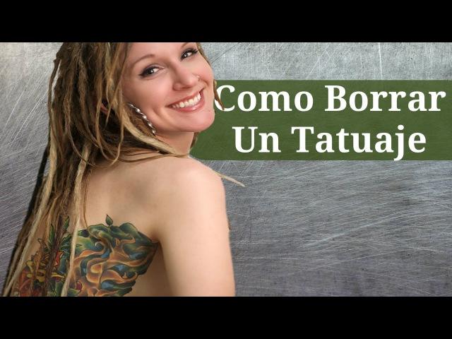 Como Borrar Un Tatuaje, Como Quitar Un Tatuaje De Forma Casera, Quitar Tatuajes Con Laser Precio