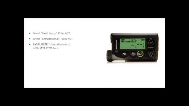 How to Program a Multiple Basal Rate with the MiniMed 530G Insulin Pump