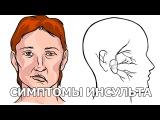 Симптомы и признаки инсульта