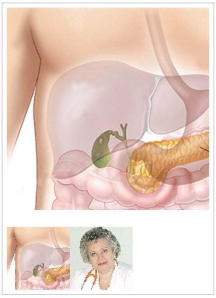Диета после операции удаление желчного пузыря