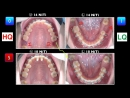 Correction of Skeletal Class ll Malocclusion. Ортодонтия.