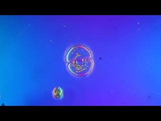 Десмидиева водоросль