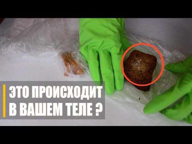🔥 ЭКСПЕРИМЕНТ Что Способствует Росту Грибков в Теле Лучшее средство против грибков и кандиды