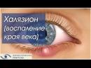 Лечение Халязиона в Новосибирске: Инъекция в халязион, Укол в халязион, Удаление халязиона