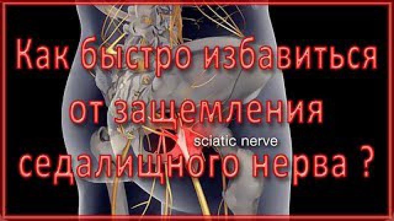 ▼Эффективное упражнение при защемлении седалищного нерва