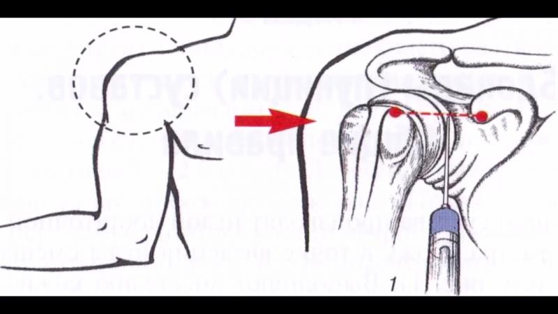 Блокада плечевого сустава. Боль в плече. Shoulder Joint Block