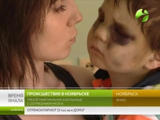 В Ноябрьске няню подозревают в избиении ребенка. У мальчика сотрясением мозга