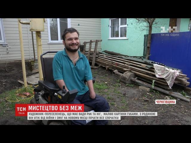 Художник з Донбасу, що має рідкісну патологію кінцівок, малює картини губами
