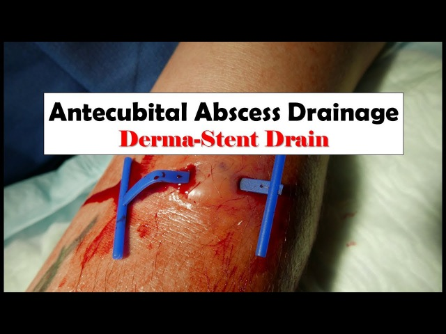 Abscess Drainage with a Derma-Stent Drain