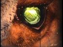 Удаление катаракты с постановкой ИОЛ методом факоэмульсификация