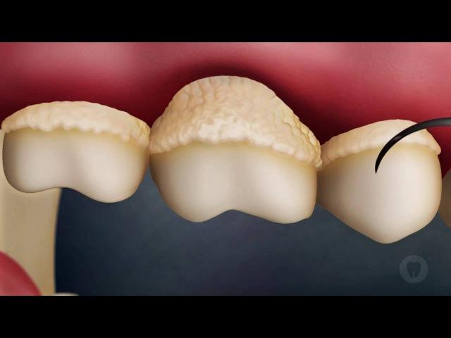 Зубной налёт и камень