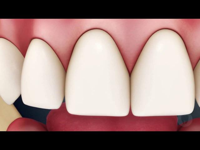Как правильно чистить зубы зубной нитью