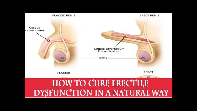How to cure erectile dysfunction in a natural way | How to Get Harder Erections