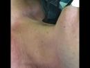 ДРОТ дермальный радиочастотный оптический термолиз
