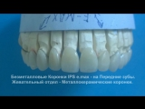Dr- Azamat -Tekuyev - Smile-Designer -koronki - keramicheskie-nalchik-IPS e.max -lechenie-otkritii- prikus-video