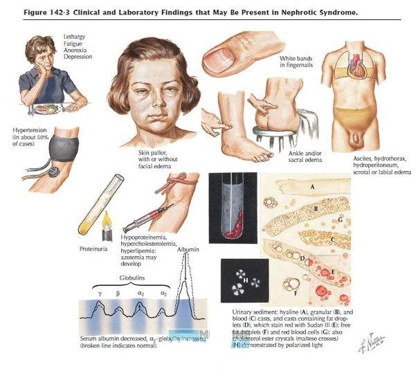 лечение гепатита на фоне диабета
