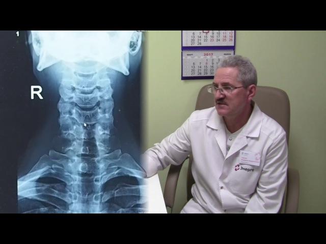 Функциональный рентген шейного отдела позвоночника