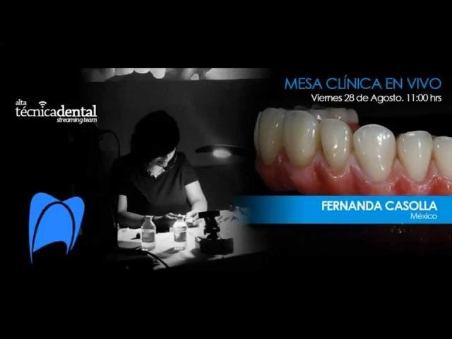 Caracterizado de prostodoncia con composites (Fernanda Casolla)