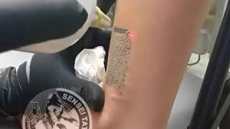 Зведення неякісного татуювання лазером
