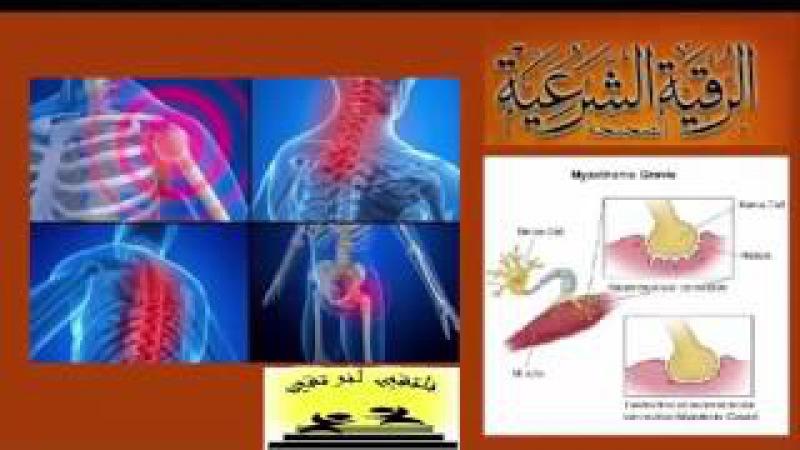 Рукия Шариатские полный лечение суставов , костей , коленного сустава
