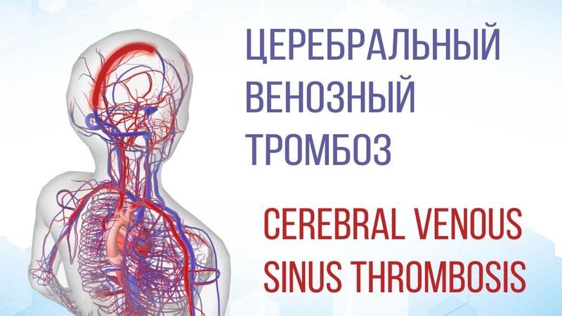 Церебральный венозный тромбоз Cerebral Venous Sinus Thrombosis