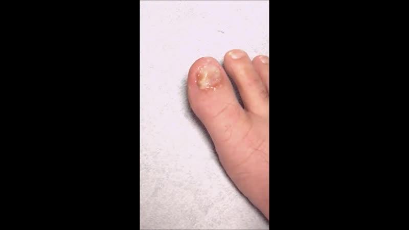 Use Urea to Kill Your Nail Fungus