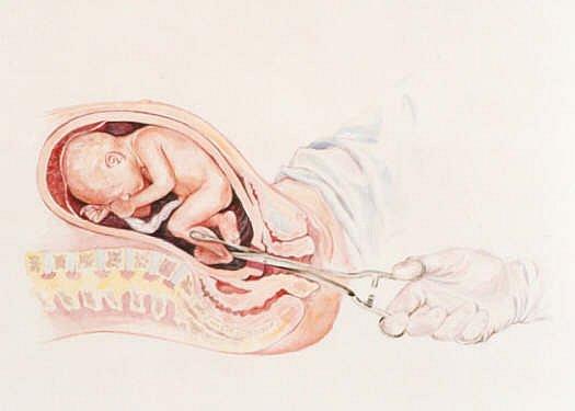 Можно ли забеременеть без месячных после родов.