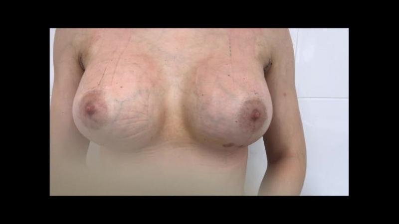 Тейпирование при увеличении груди. Снятие тейпов.