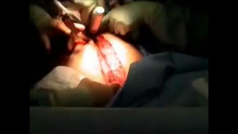 Bıçak Çatladı Inside Göğüs Temizleme Tıbbi Cerrahi - Tıbbi Videolar